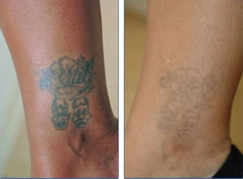 is it possible to remove a tattoo removal
