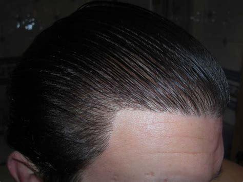 black man 3000 grafts hair transplant 3000 graft result