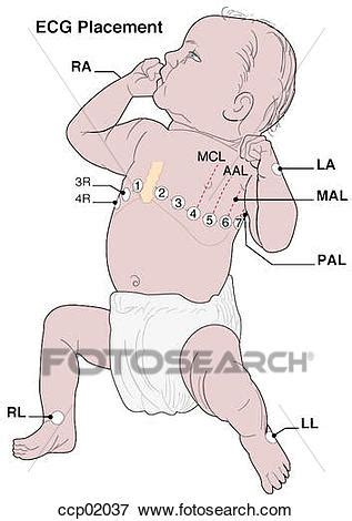 pediatric lead placement diagram pediatric lead placement diagram pediatric