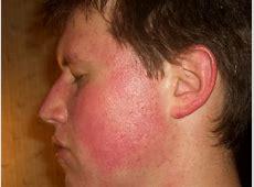 Rote Wangen, Mittel um dagegen anzukämpfen (Haut, Rötung) Lupus Vulgaris Face