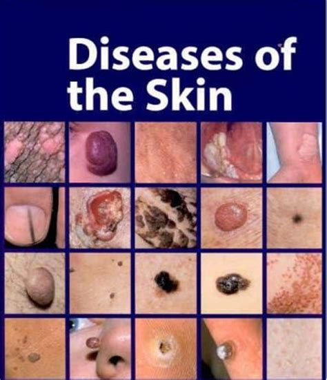 Type Of Disease Skin Conditions   different types of skin diseases letmeget com