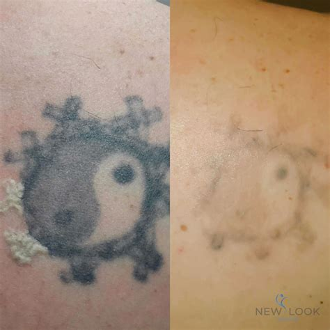 latest tattoo removal laser removal new look houston