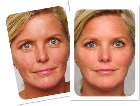 Laser Wrinkle Removal Before And After | laser treatments ukbefore after laser anti wrinkle