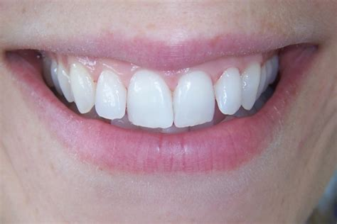 cosmetic teeth whitenning  vaswani dental practice