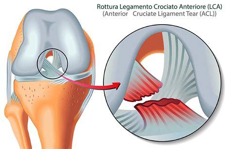 dolore ginocchio parte interna legamento crociato anteriore lca