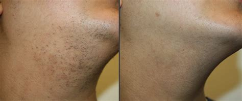 ipl hair removal clinic laser hair removal abl clinic