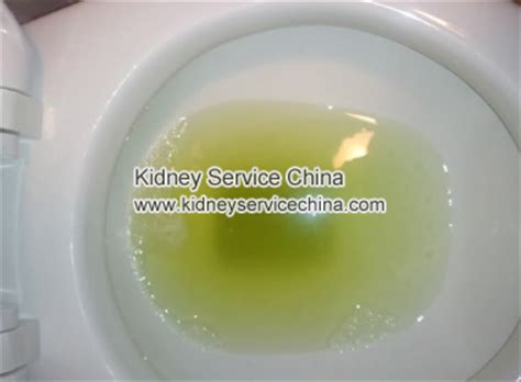 protein in urine what symptoms may appear if patient has proteinuria