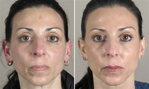 skin resurfacing patient 1 center for plastic surgery