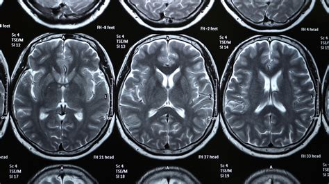 brain x the of maintaining cognitive health as our brains age