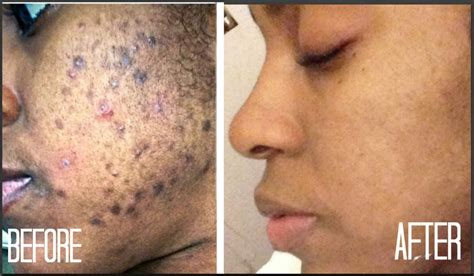 skin how i got rid of dark scars hyperpigmentation
