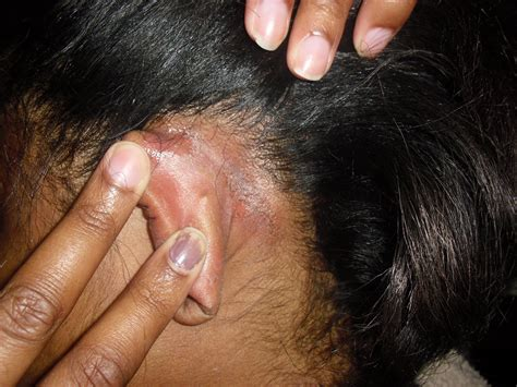 Hair Dryer Effects On Scalp chemical burns walmart salons and crappy customer service