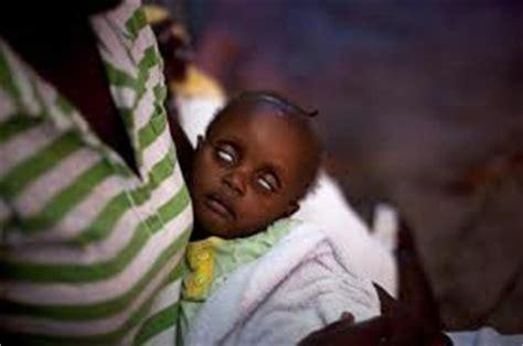 Black Letter Ne Demek Kolera Nedir Belirtileri Nelerdir Nas箟l Tedavi Edilir 187 Bilgiustam