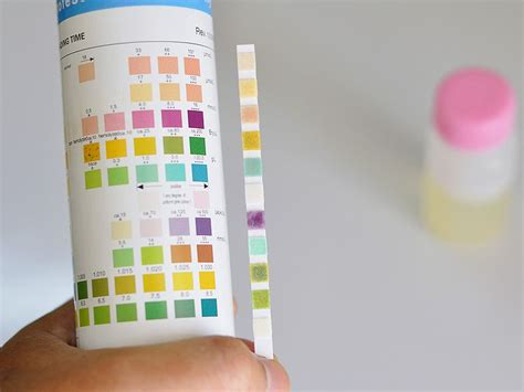 Sensitif Test Urine urinalysis more sensitive in infants than thought