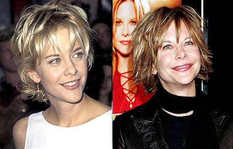 when did meg ryan have a face lift chatter busy meg ryan plastic surgery