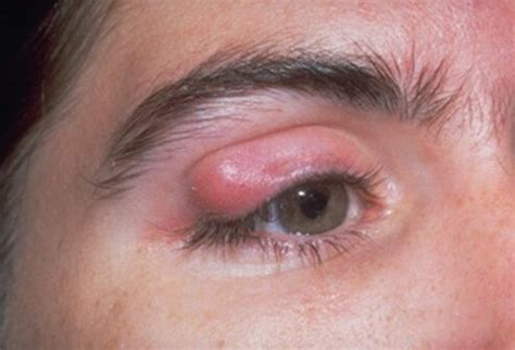 cyst on s eyelid chalazion picture image on medicinenet