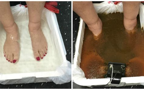 Ion Cleanse Detox Foot Bath Does It Work by Ion Cleanse Detox Footbath Part 2 Wellnesshub