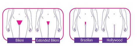 full brazilian hair removal bikini waxing hair removal help