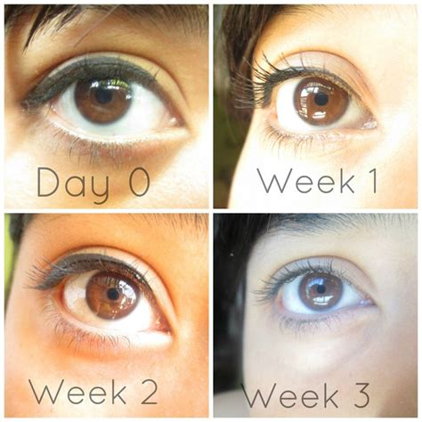 S Eye Color Changing After Detoxing by Biokinesis Results Learn Biokinesis