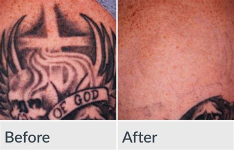 tattoo removal business opportunities laser removal genesis medspa jefferson city