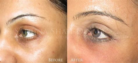 black under eye wrinkle treatment dermal fillers deep facial lines tear