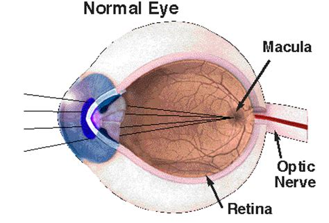 macular pattern dystrophy icd 9 what cells cause retinal detachment heidelberg retinal
