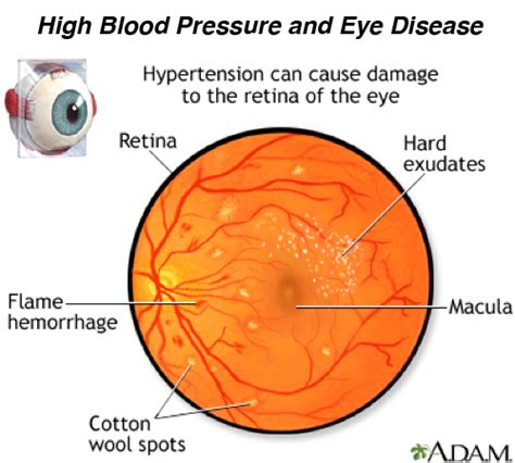 fundus exam findings ocular effects of hypertension