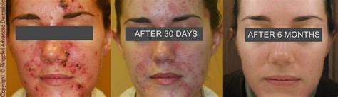 photodynamic therapy for acne philadelphia pulse dye