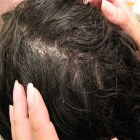 severe dry scalp treatment for african american hair ehow the gallery for gt dry scalp flakes