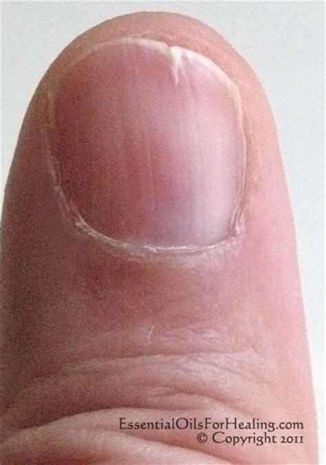 split toenail weak split prone nails no more grapeseed does the trick www