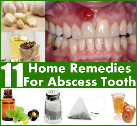 abscessed tooth images