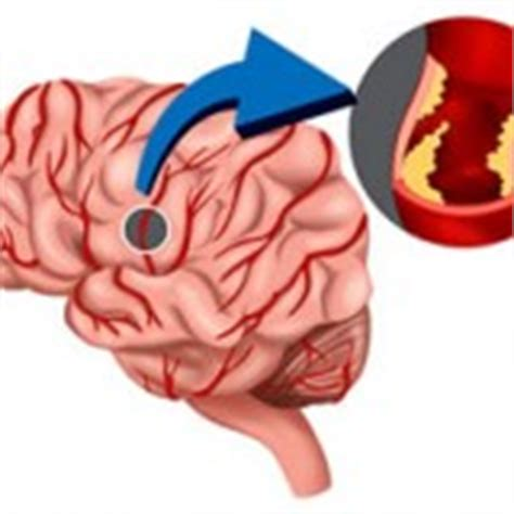 vasi cavernosi gli angiomi cavernosi riabilitazione ictus cerebrale