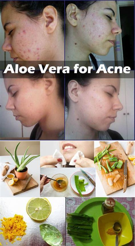 Masker Aloe Vera aloe vera and lemon mask the combination of aloe vera