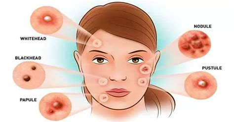 Tips Acne Skin Clear Methods by How To Get Rid Of Pimples Overnight Get Clear Skin In