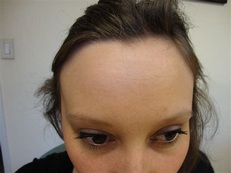 vig for head file human forehead jpg wikimedia commons