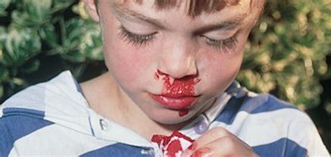porque sale sangre por la nariz sangra la nariz del ni 241 o blog