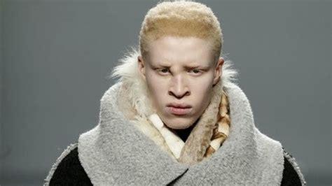 Eddie Ross by El Modelo Albino Mejor Dotado De La Pasarela