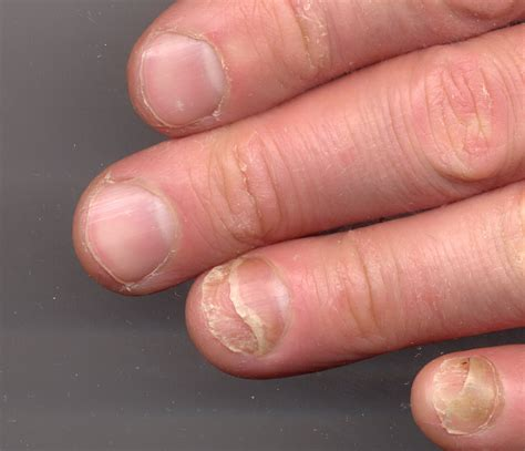nail bed damage nail clinic nail problems nail disease nail lifting