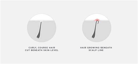 it looks like a simple ingrown hair until why do black men get razor bumps bevel