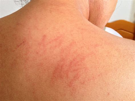 with allergies top 5 triggers for skin allergy