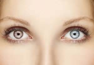 two different colors image gallery heterochromia