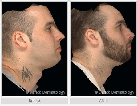 tattoo removal in orlando fl laser removal before and after winter park laser