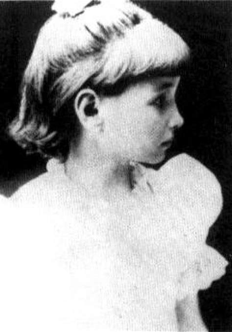Helen As A Young Girl Most Likely After Annie Sullivan Helen Keller Pictures When She Was Younger Coloring Pics