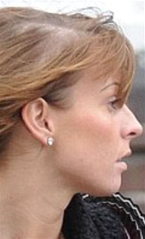 how many celebrities have thinning hair coleen rooney displays thinning hair after years of