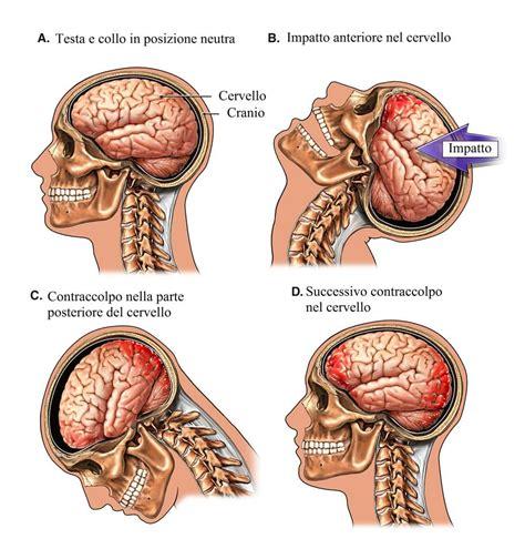 capogiri a letto cause cranico sintomi conseguenze e terapia per bambini