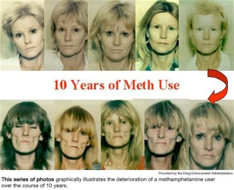 Detox For Meth by Meth Effects Psychological Effects Of Methhetamine