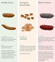Brown Blood In Stool by How To Spot Bowel Cancer Signs And See If Your Poo Is