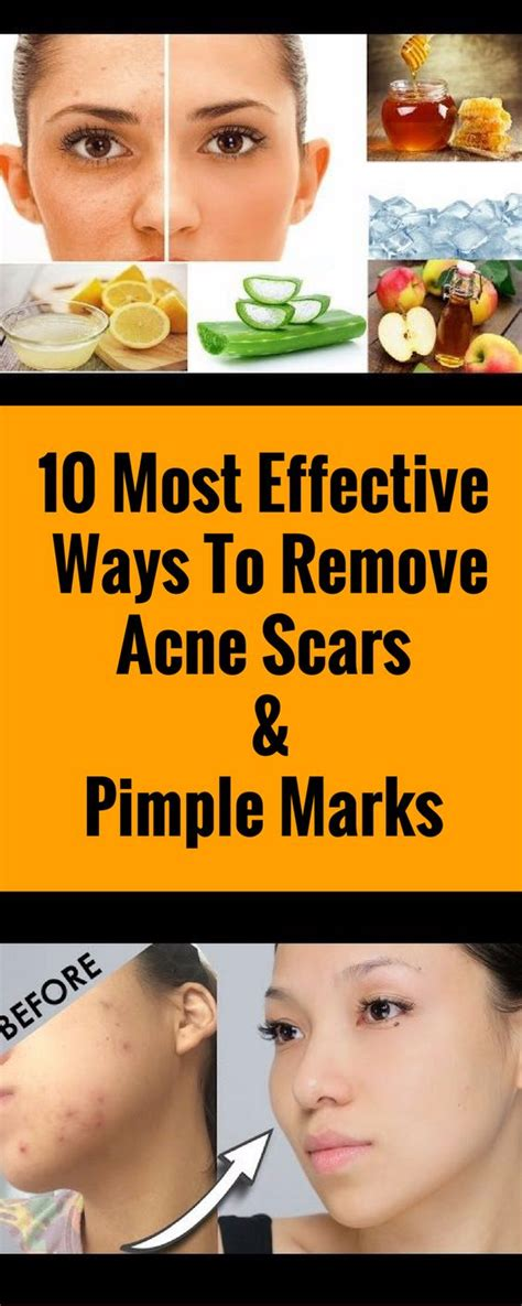10 Ways To Treat Acne Scars by 10 Most Effective Ways To Remove Acne Scars Pimple Marks