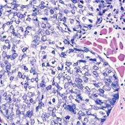 Basal Cell Carcinoma Skin Pathology Outlines by Pathology Outlines Sebaceous Carcinoma