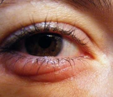 swollen eye home treatment itchy eyelids swollen allergies yeast infection home remedy and