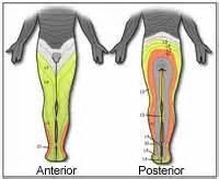 sciatica diagram sciatica northwest center